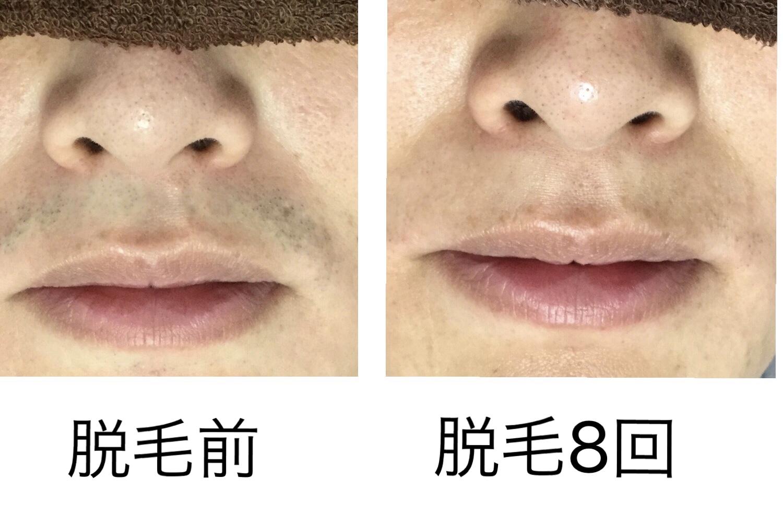 ★鼻下脱毛 8回目
