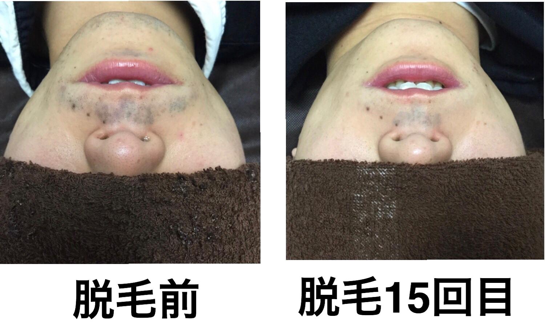 ★鼻下ヒゲ脱毛  15回目