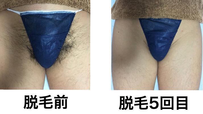 ★VIO脱毛(Vライン) 5回目