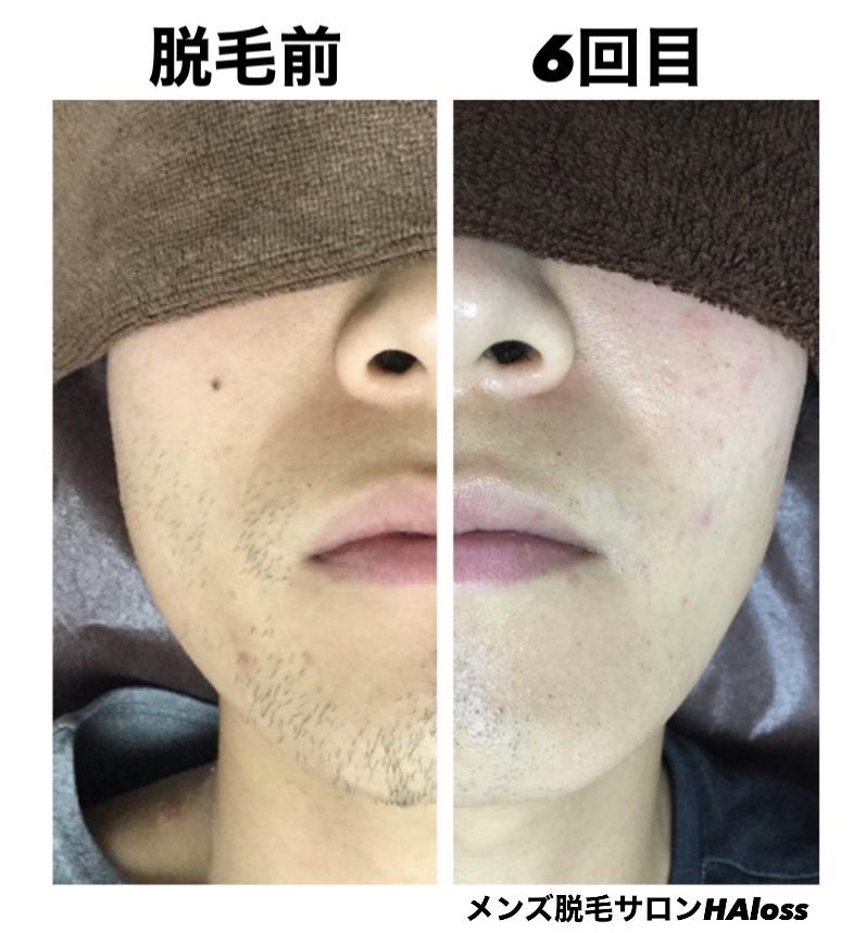 ★髭脱毛 6回目