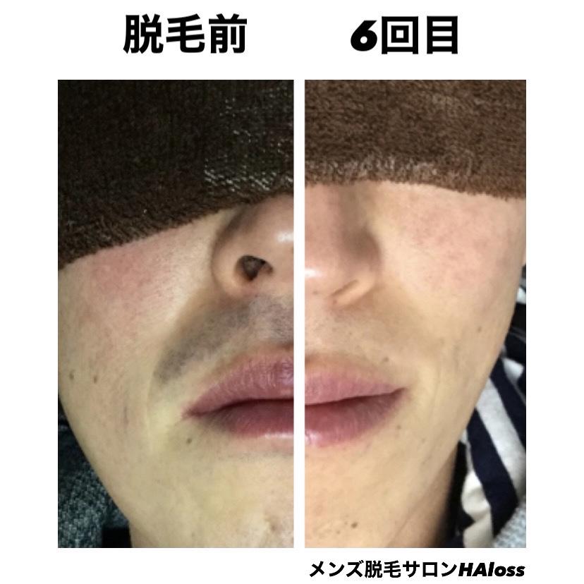 ★鼻下脱毛 6回目