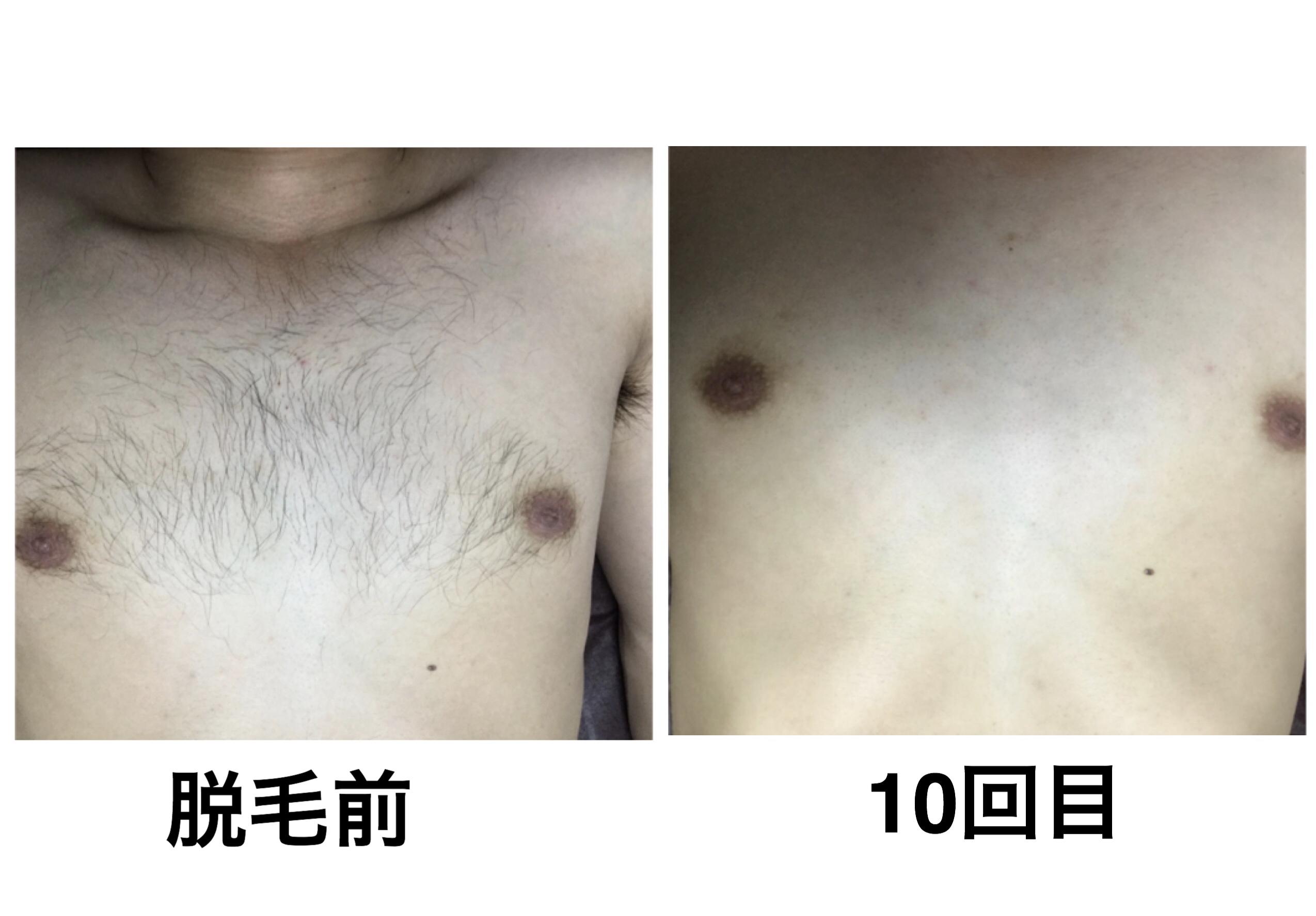 ★胸脱毛 10回目