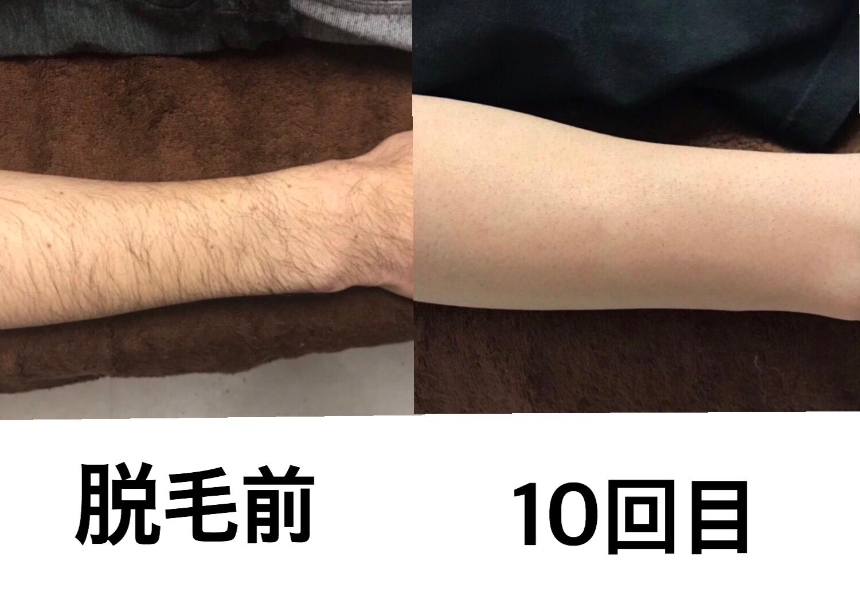 ☆腕脱毛 10回目