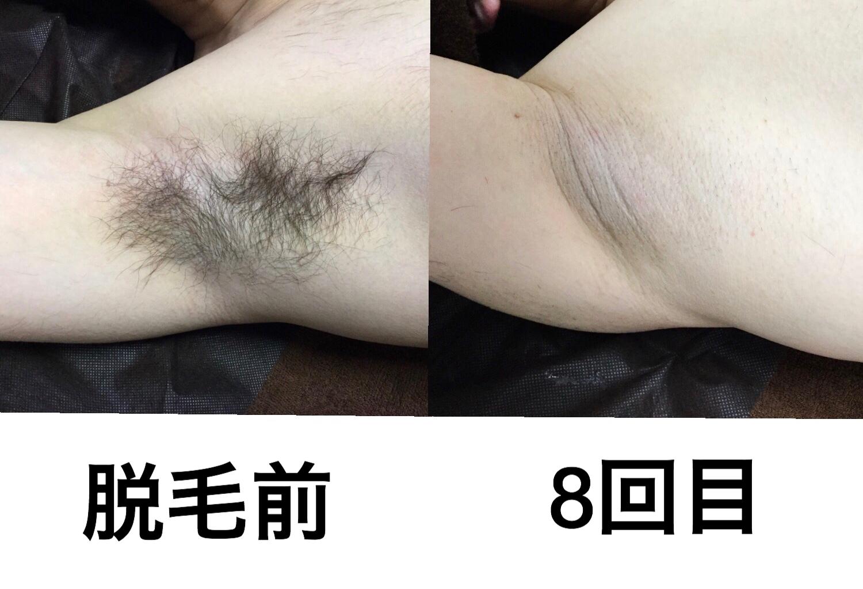 ★脇脱毛  8回目