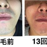★鼻下あごヒゲ脱毛 13回目