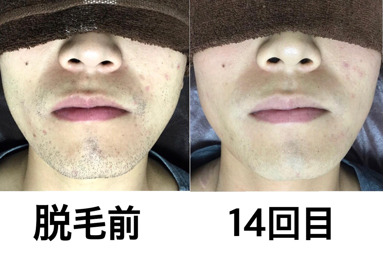 ☆髭脱毛 14回目