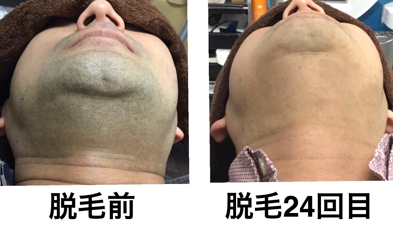 ★あごヒゲ・首脱毛  24回目