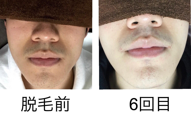 ★鼻下顎 24歳
