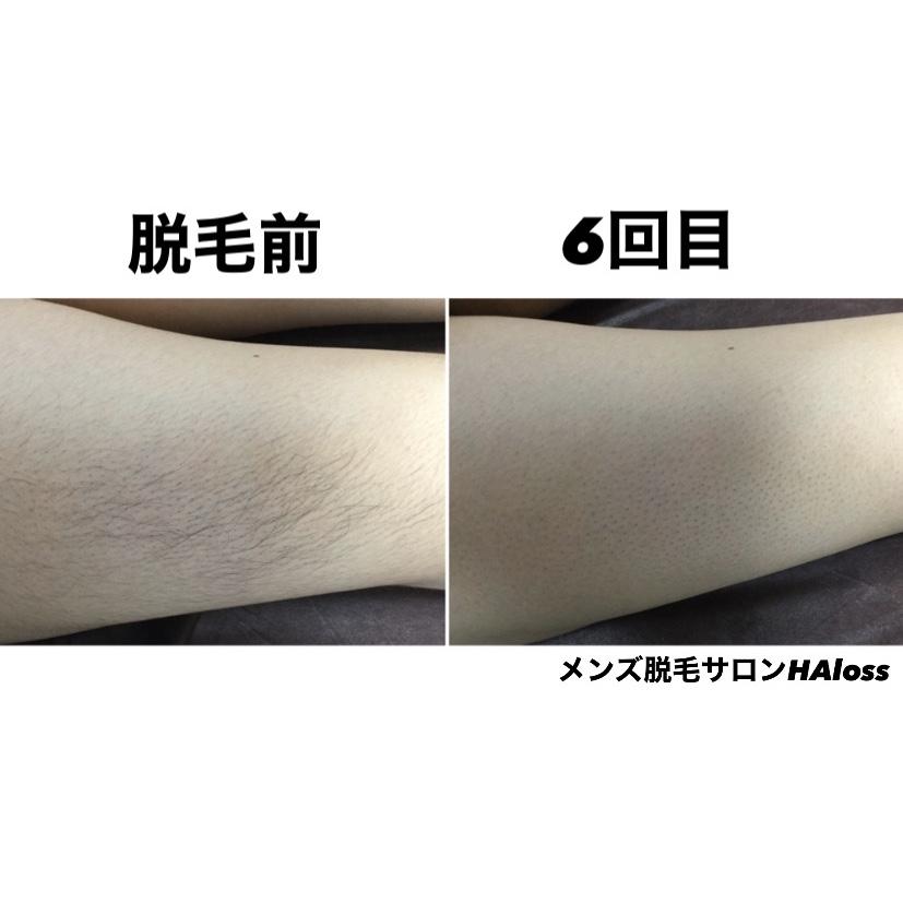 ★足脱毛 6回目
