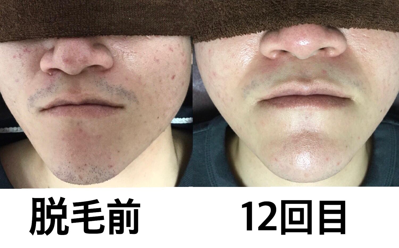 ★髭脱毛 12回目