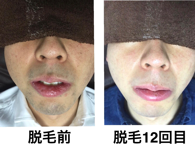 ★頬・鼻下・あごヒゲ脱毛 12回目
