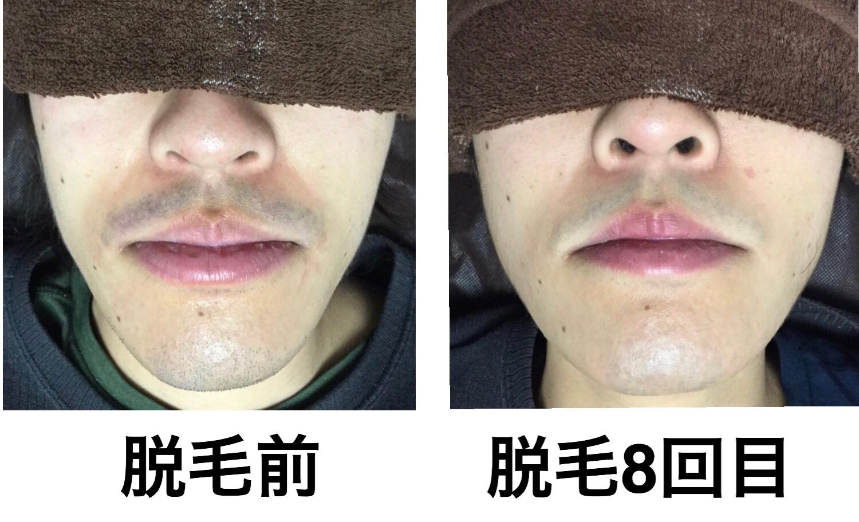 ★鼻下・あごヒゲ脱毛  8回目