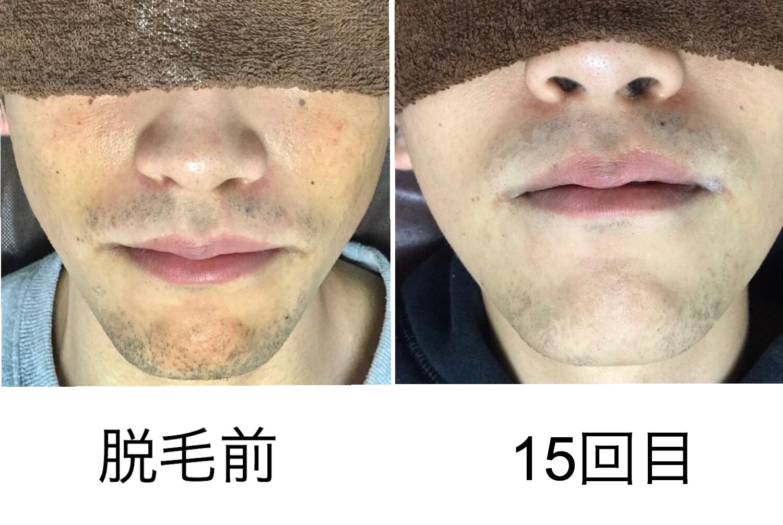 ★鼻下、顎 15回目