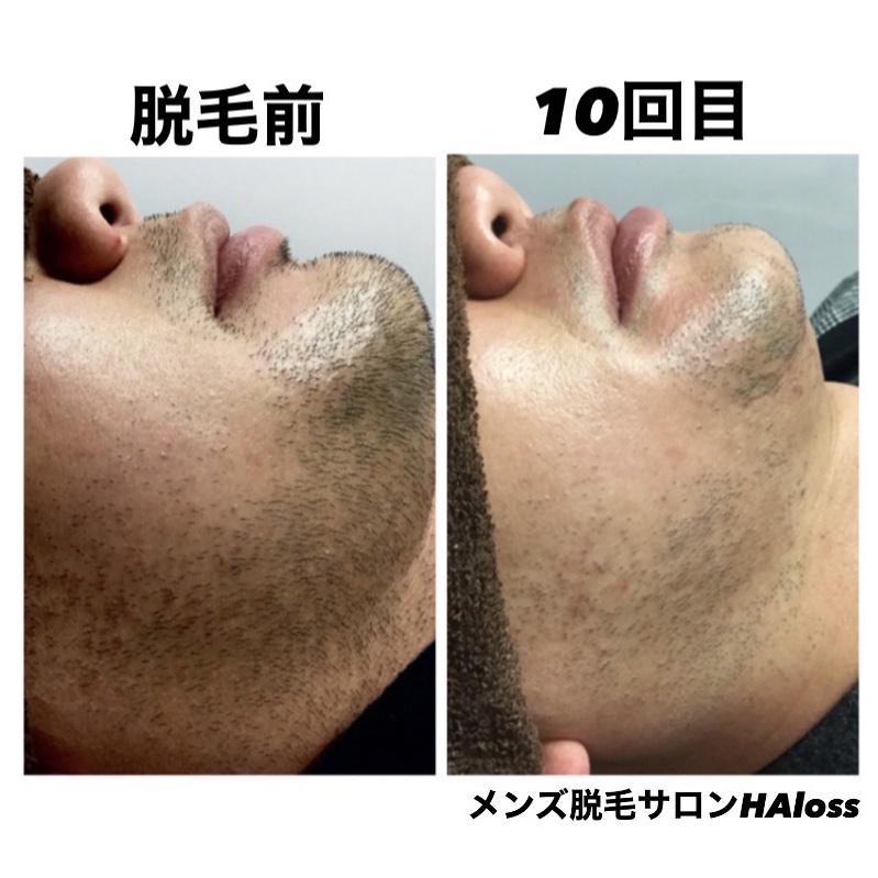 ★髭脱毛 10回目