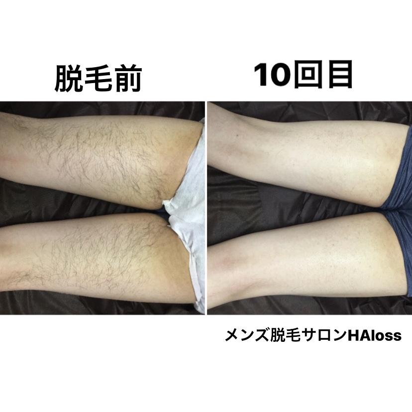 ★足脱毛 10回目