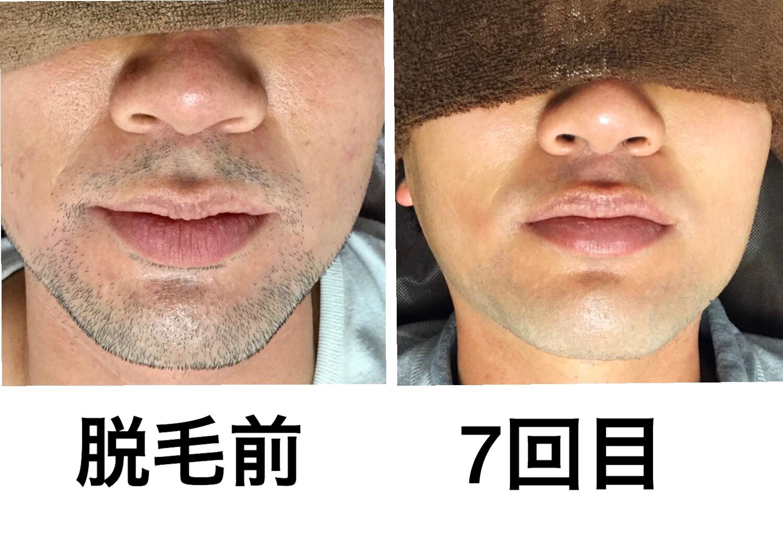 ☆髭脱毛  7回目