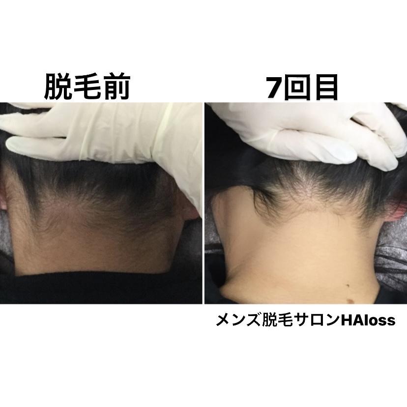 ★うなじ脱毛 7回目