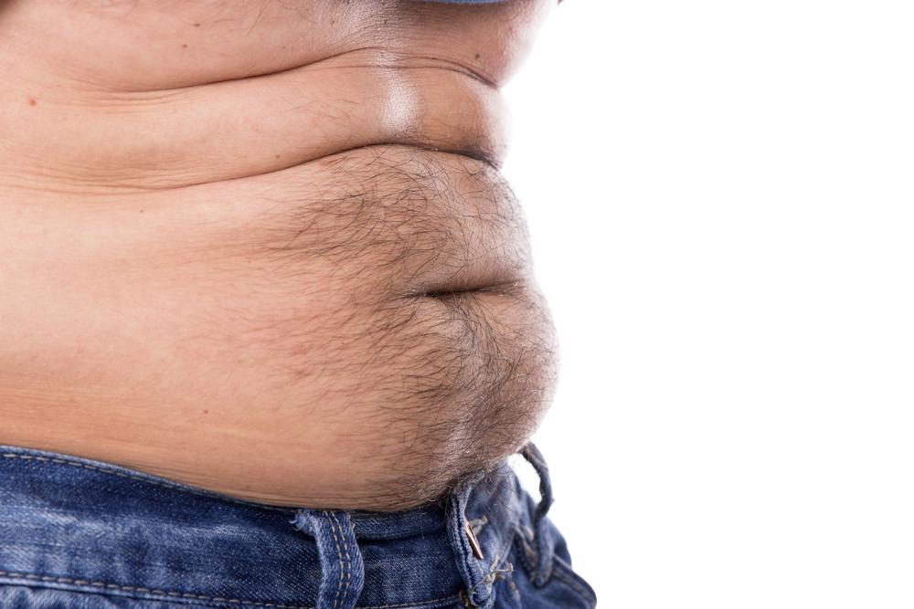 腹毛を脱毛している人が増えているって本当?