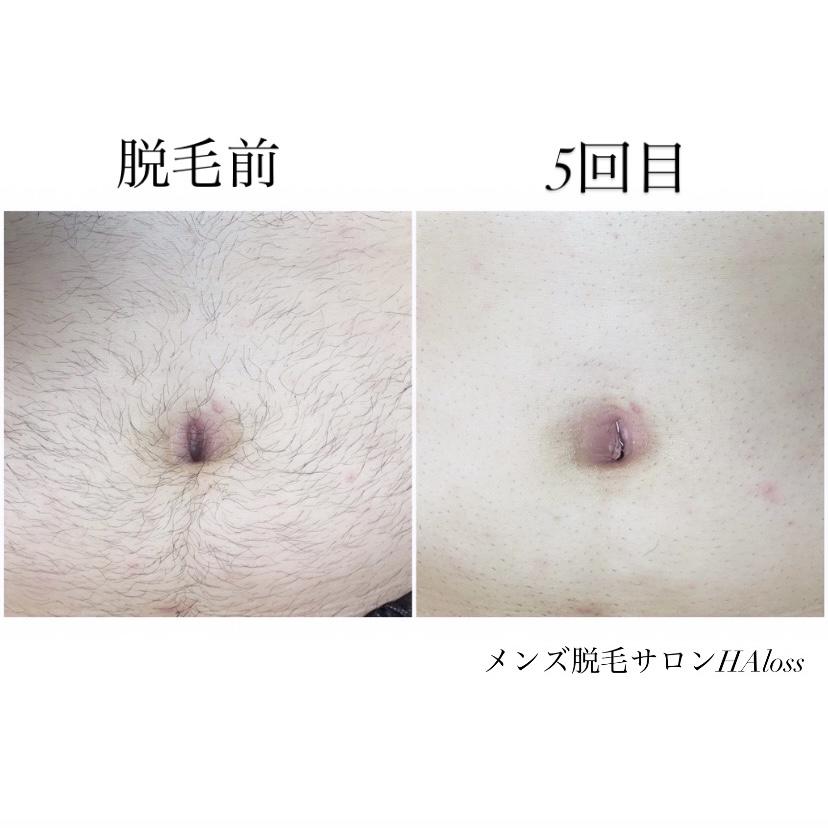 ★お腹脱毛 5回目